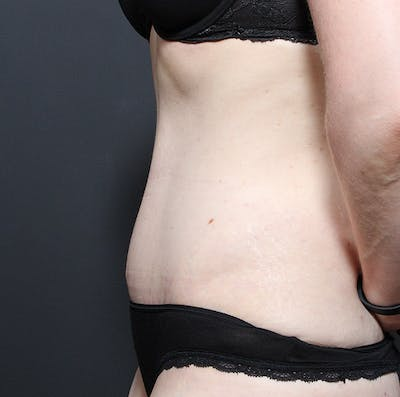 Tummy Tuck Gallery - Patient 20543250 - Image 6