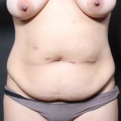 Tummy Tuck Gallery - Patient 20543256 - Image 1