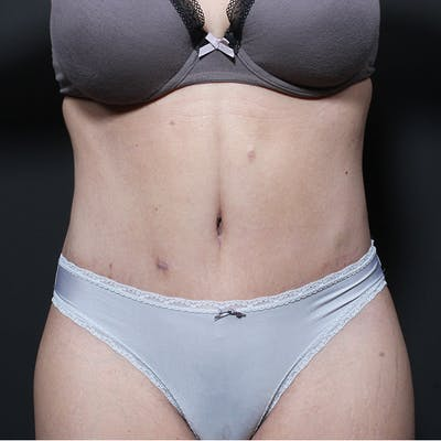 Tummy Tuck Gallery - Patient 20543256 - Image 2