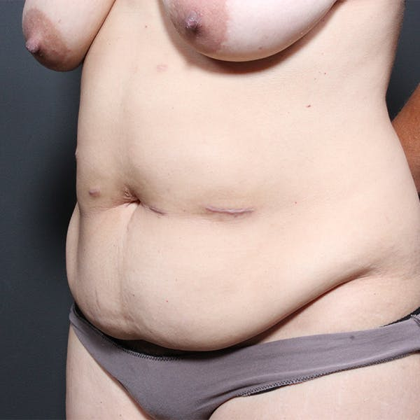 Tummy Tuck Gallery - Patient 20543256 - Image 3
