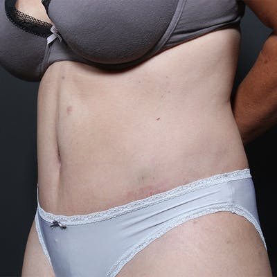 Tummy Tuck Gallery - Patient 20543256 - Image 4