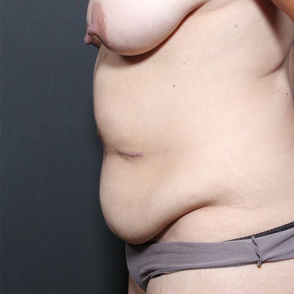 Tummy Tuck Gallery - Patient 20543256 - Image 5