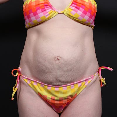Tummy Tuck Gallery - Patient 20543258 - Image 1