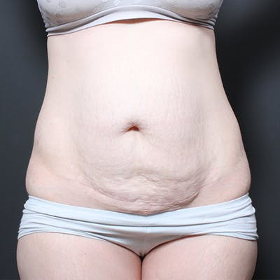 Tummy Tuck Gallery - Patient 20543260 - Image 1