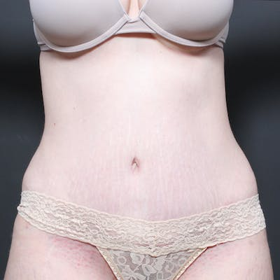 Tummy Tuck Gallery - Patient 20543260 - Image 2