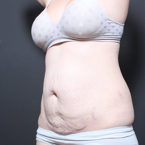 Tummy Tuck Gallery - Patient 20543260 - Image 3