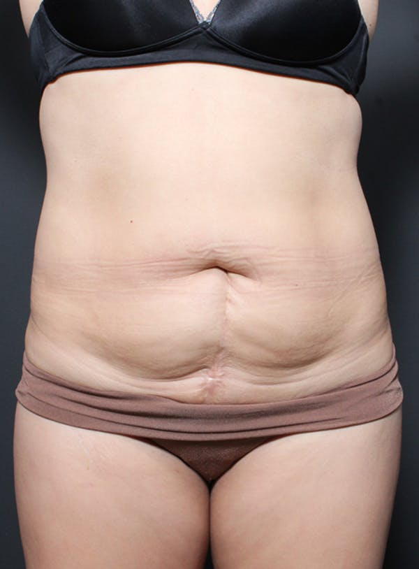 Tummy Tuck Gallery - Patient 20543261 - Image 1