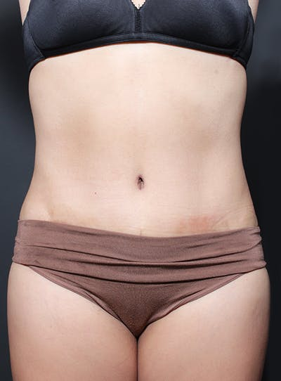 Tummy Tuck Gallery - Patient 20543261 - Image 2