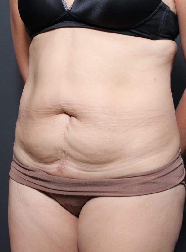 Tummy Tuck Gallery - Patient 20543261 - Image 3
