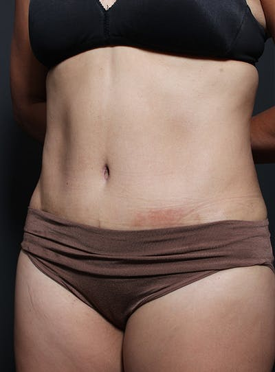 Tummy Tuck Gallery - Patient 20543261 - Image 4