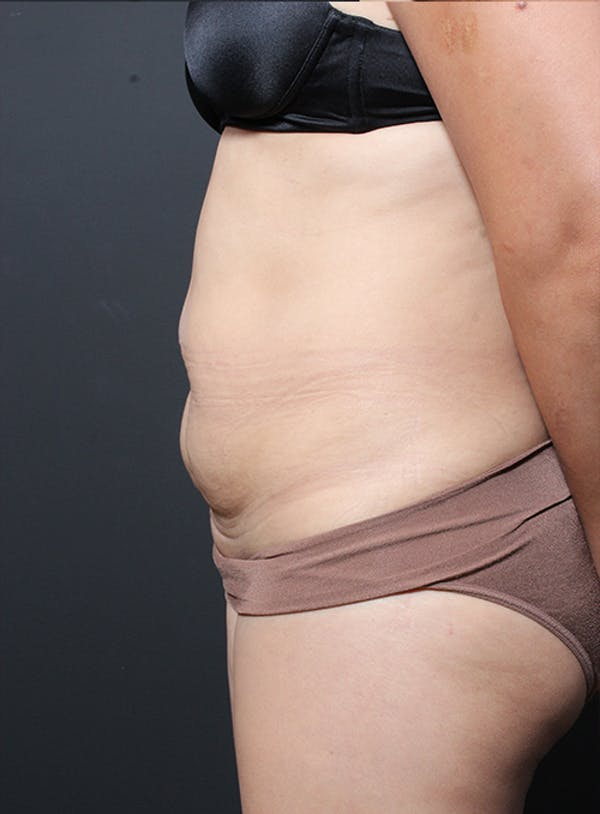 Tummy Tuck Gallery - Patient 20543261 - Image 5