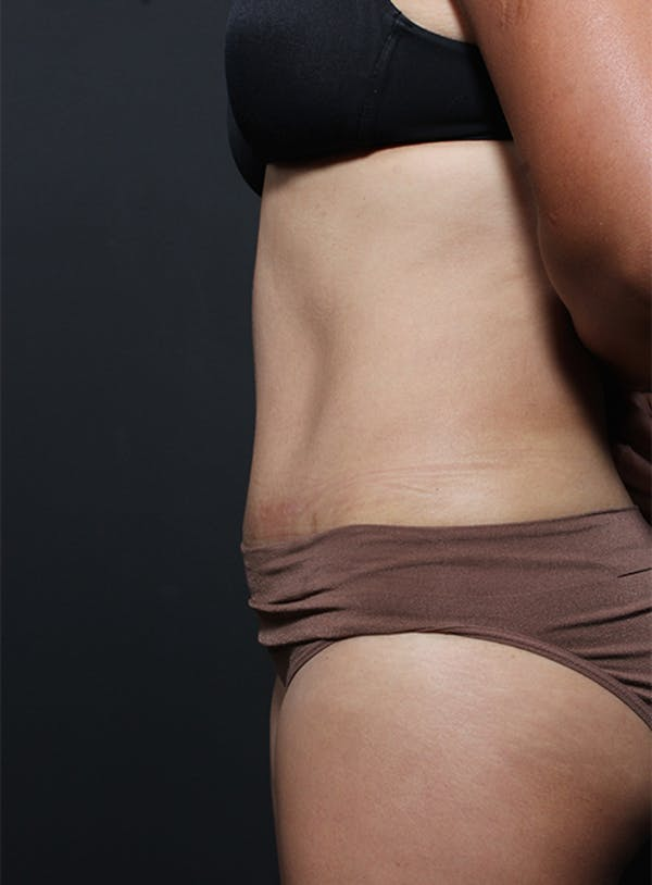 Tummy Tuck Gallery - Patient 20543261 - Image 6