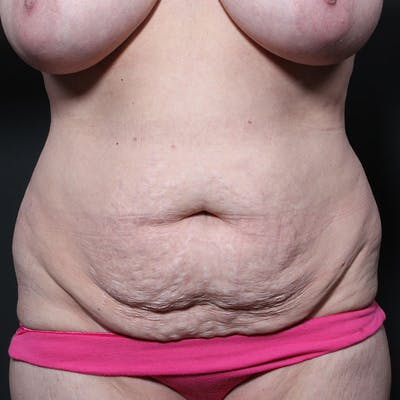Tummy Tuck Gallery - Patient 20543270 - Image 1