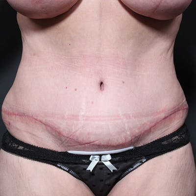 Tummy Tuck Gallery - Patient 20543270 - Image 2