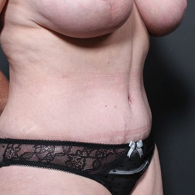 Tummy Tuck Gallery - Patient 20543270 - Image 8