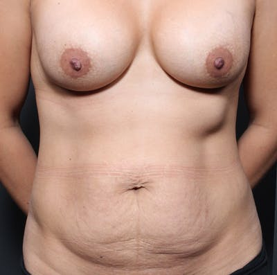 Tummy Tuck Gallery - Patient 20543279 - Image 1
