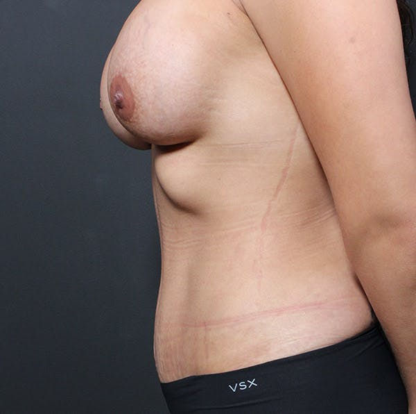 Tummy Tuck Gallery - Patient 20543279 - Image 6