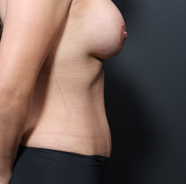 Tummy Tuck Gallery - Patient 20543279 - Image 10