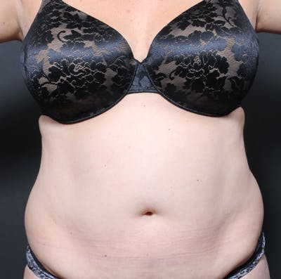 Tummy Tuck Gallery - Patient 20543280 - Image 1