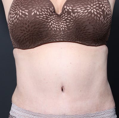 Tummy Tuck Gallery - Patient 20543280 - Image 2