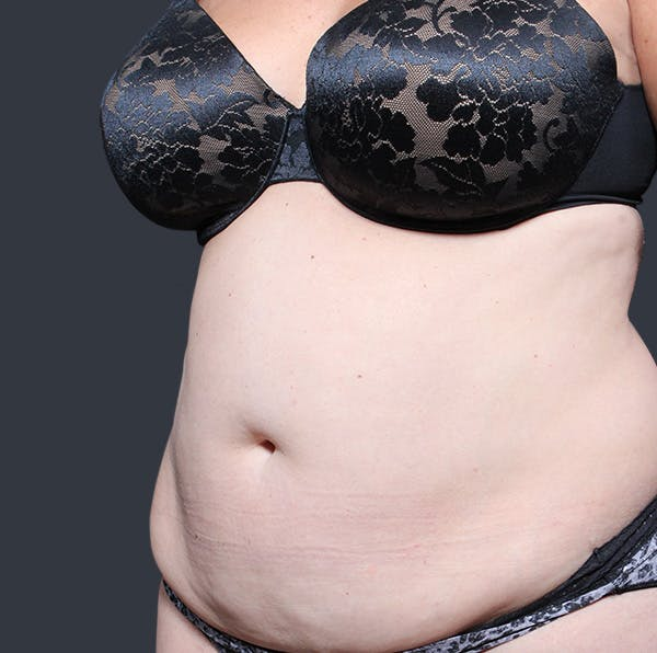 Tummy Tuck Gallery - Patient 20543280 - Image 3