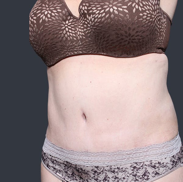 Tummy Tuck Gallery - Patient 20543280 - Image 4