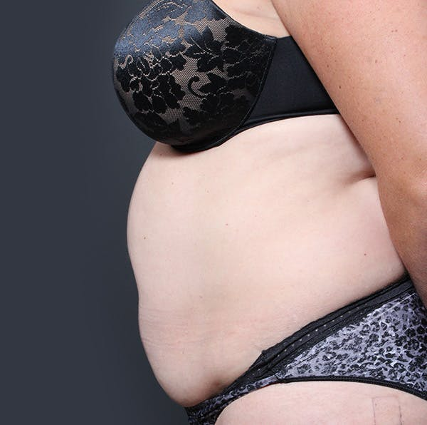Tummy Tuck Gallery - Patient 20543280 - Image 5