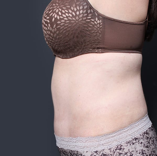 Tummy Tuck Gallery - Patient 20543280 - Image 6
