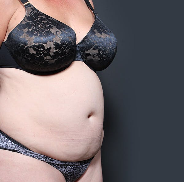 Tummy Tuck Gallery - Patient 20543280 - Image 7