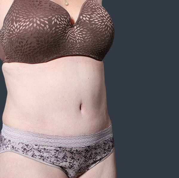Tummy Tuck Gallery - Patient 20543280 - Image 8