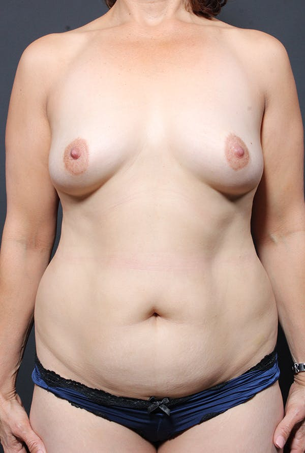 Tummy Tuck Gallery - Patient 20543281 - Image 1