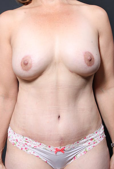 Tummy Tuck Gallery - Patient 20543281 - Image 2