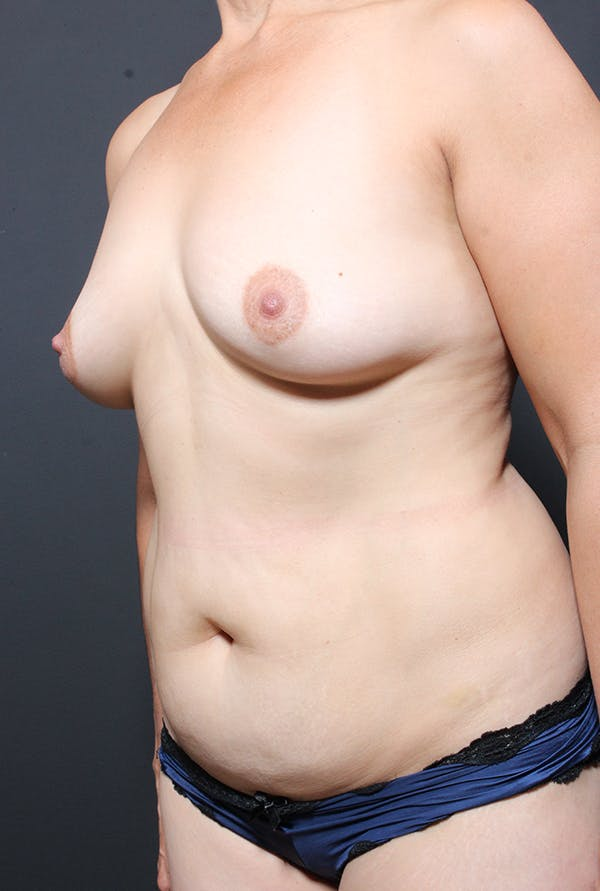 Tummy Tuck Gallery - Patient 20543281 - Image 3