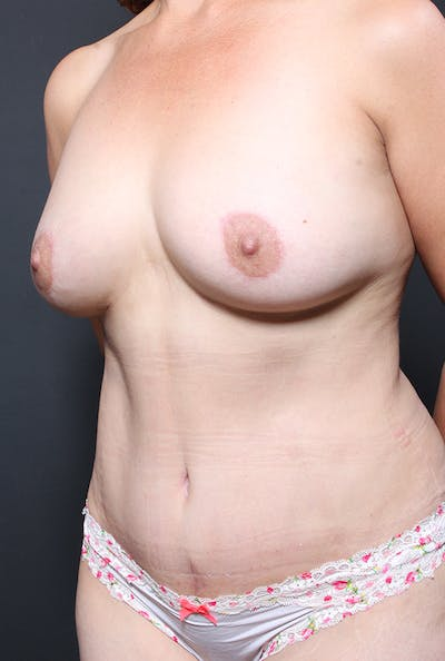 Tummy Tuck Gallery - Patient 20543281 - Image 4