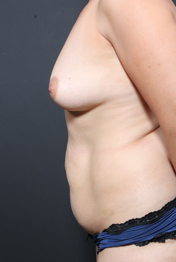 Tummy Tuck Gallery - Patient 20543281 - Image 5