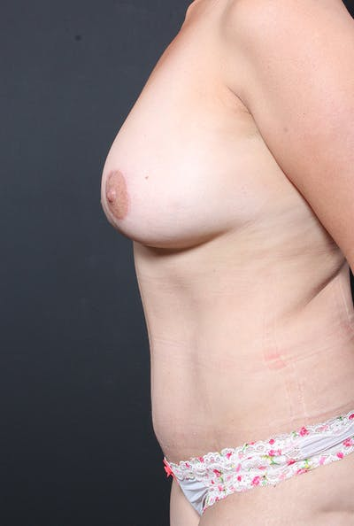 Tummy Tuck Gallery - Patient 20543281 - Image 6