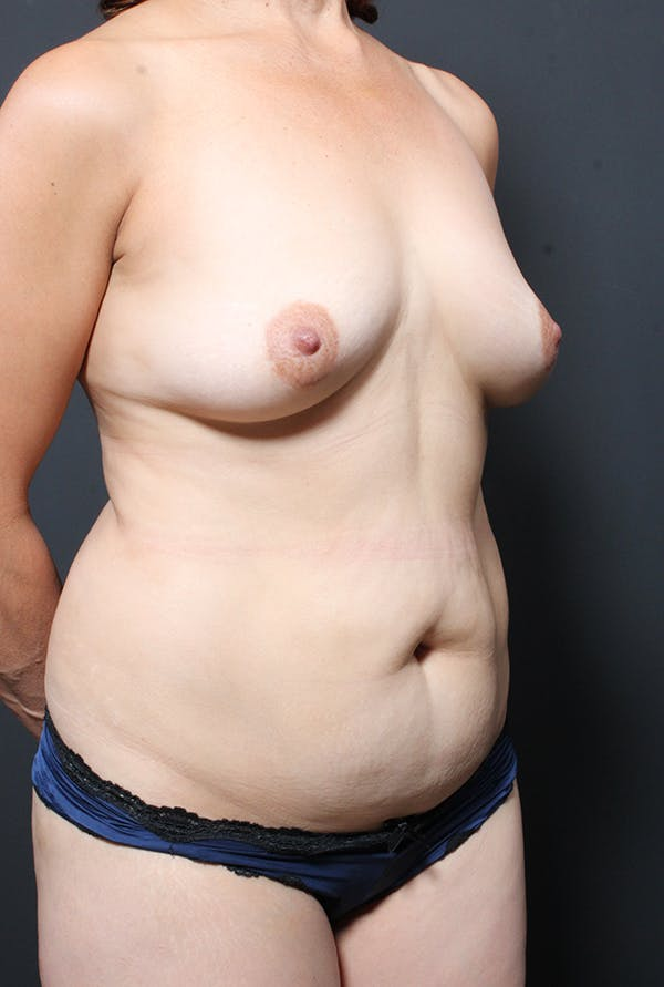 Tummy Tuck Gallery - Patient 20543281 - Image 7