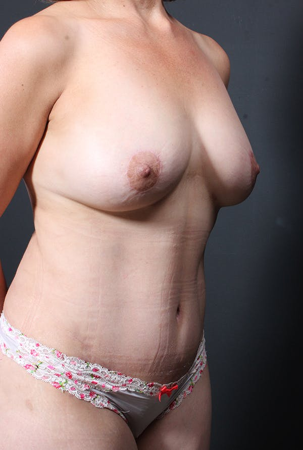 Tummy Tuck Gallery - Patient 20543281 - Image 8