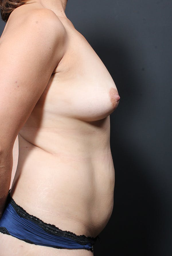 Tummy Tuck Gallery - Patient 20543281 - Image 9