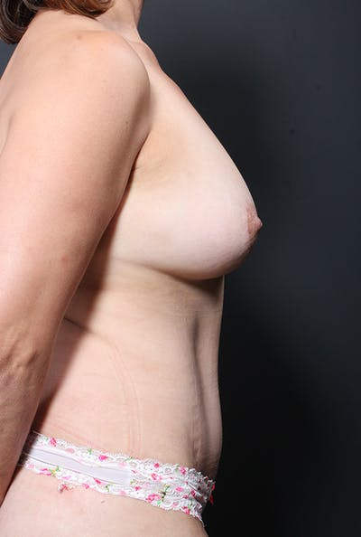 Tummy Tuck Gallery - Patient 20543281 - Image 10
