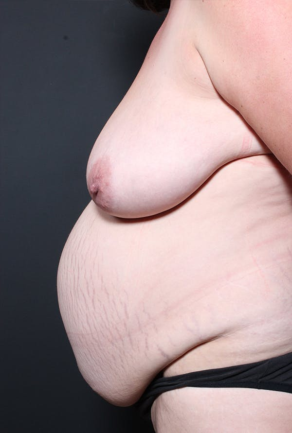 Tummy Tuck Gallery - Patient 20543282 - Image 5