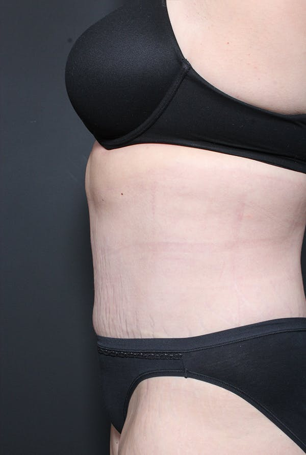 Tummy Tuck Gallery - Patient 20543282 - Image 6