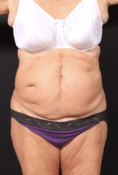 Tummy Tuck Gallery - Patient 20543291 - Image 1