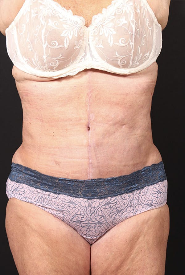 Tummy Tuck Gallery - Patient 20543291 - Image 2