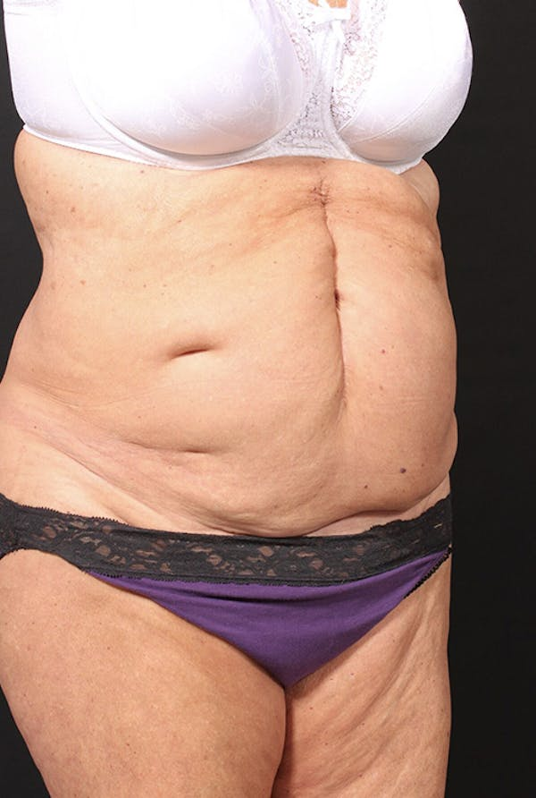 Tummy Tuck Gallery - Patient 20543291 - Image 3