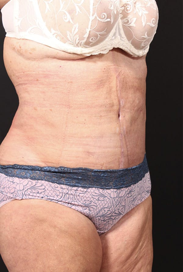 Tummy Tuck Gallery - Patient 20543291 - Image 4