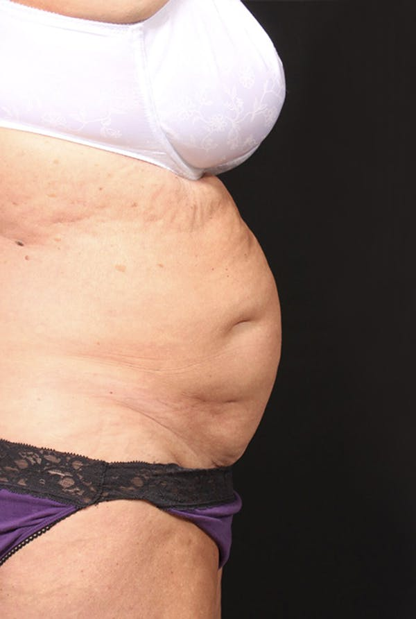 Tummy Tuck Gallery - Patient 20543291 - Image 5