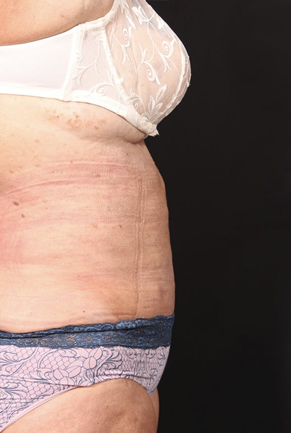 Tummy Tuck Gallery - Patient 20543291 - Image 6