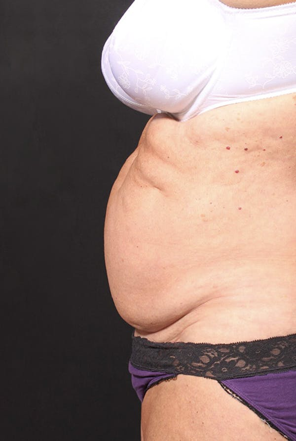 Tummy Tuck Gallery - Patient 20543291 - Image 7