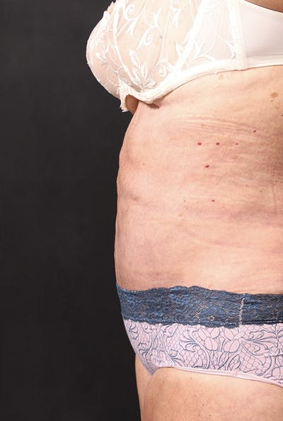 Tummy Tuck Gallery - Patient 20543291 - Image 8